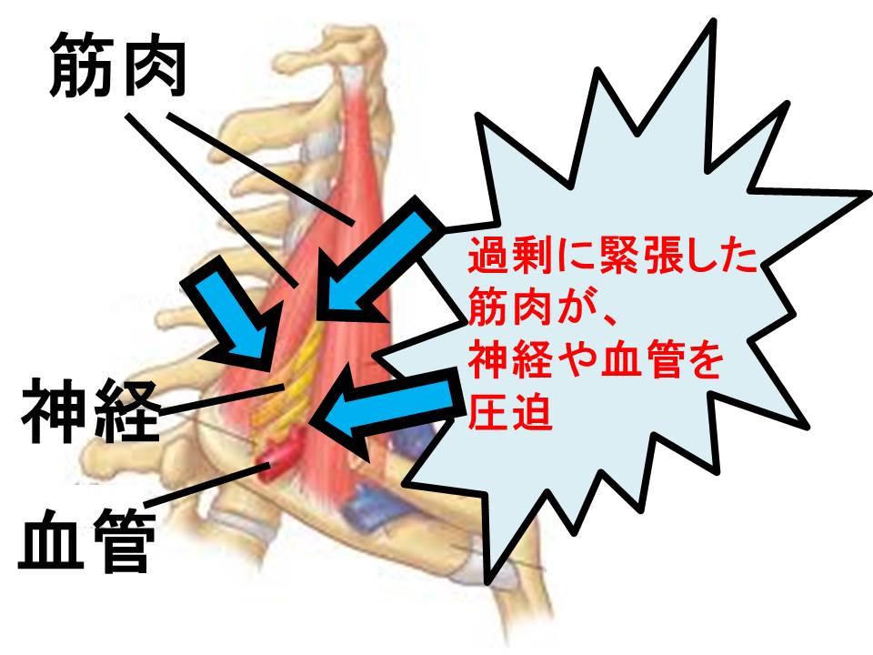 筋肉の圧迫